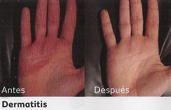 Tratamiento para la dermatitis con dermalux