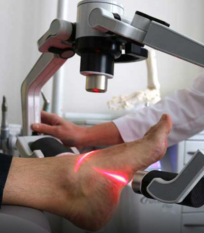laser fx tecnologia