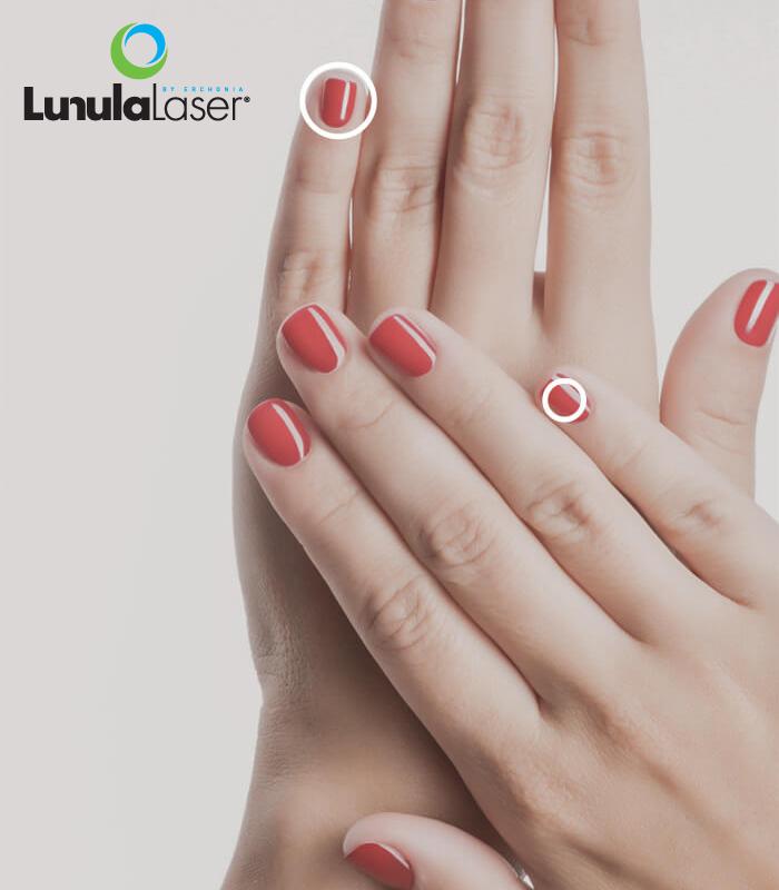 Tratamiento lunula para eliminar los hongos de las uñas