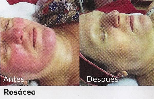 Tratamiento dermalux para piel rosacea